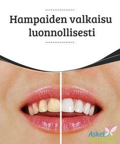 Hampaiden valkaisu luonnollisesti  Nykyään #markkinoilla jyllää useita tuotteita hampaiden valkaisuun. Tuotteet ovat kuitenkin valmistettu hampaisiin tunkeutuvista ainesosista, jotka vahingoittavat kiillettä #peruuttamattomasti. Mikäli haluat valkaista hampaasi, kokeile #äärimmäisten keinojen sijaan näitä luonnollisia keinoja.  #Kauneus