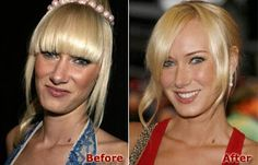 Kimberly Stewart Plastic Surgery. This is a great example of how a well-executed nose surgery can dramatically alter your apperance.