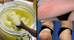Effective Homemade Sugar-Salt Exfoliation Peeling to Remove Stretch Marks and Cellulite What is peeling? Peeling or clean is a restorative accomplice in evac. Combattre La Cellulite, Cellulite Remedies, Cellulite Cream, Stretch Mark Removal, Stretch Marks, Facial Care, Tips Belleza, Home Recipes, Beauty Tips