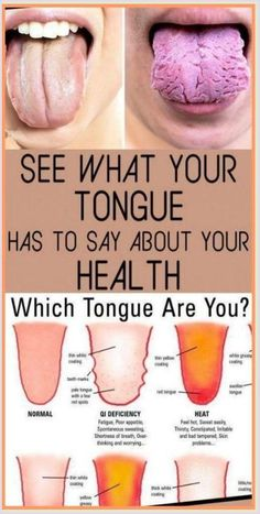 What Your Tongue is Trying to Tell You About Your Health Tongue Health, Yoga Training, Thing 1, Medical Problems, Health Problems, Natural Medicine, Herbal Medicine, Homeopathic Medicine, Holistic Medicine