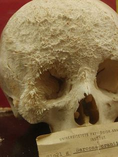 """corporisfabrica: """" A skull once affected by sarcoma cranii, a type of bone cancer. The rough, crystalline surface of the frontal and zygomatic bones is the product of the ossification of the lesion. Medical Student, Medical Science, Medical Technology, Medical School, Nclex, Bone Cancer, Forensic Anthropology, Biological Anthropology, Human Skull"""
