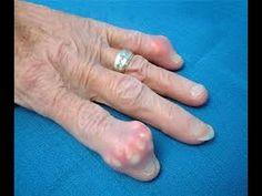 Was ist gicht krankheit-Ursachen symptome und behandlung von gicht.