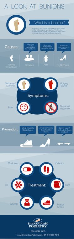 Learn more about #bunions with this #infographic