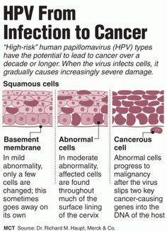 virus_hpv_cancer