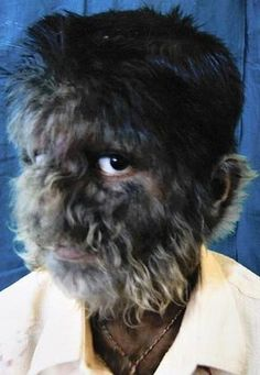 """Technically called Hypertrichosis, Several circus side show performers in the 19th and early 20th centuries suffered from hypertrichosis. They were usually displayed as """"freaks"""" and promoted as if they had distinct human and animal traits."""