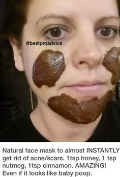Natural face mask to almost INSTANTLY get rid of acne/scars, Even if it looks li. - Natural face mask to almost INSTANTLY get rid of acne/scars, Even if it looks like baby poop. Homemade Acne Mask, Homemade Acne Treatment, Homemade Facials, Cystic Acne Remedies, Diy Masque, Acne Face Mask, Scar Treatment, Acne Treatments, Acne Scar Removal