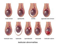 Testicular abnormalities