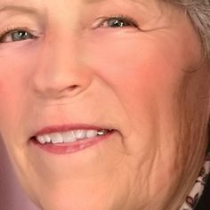 Naturopathic Medicine columnist Nancy A. Patterson discusses fermented foods