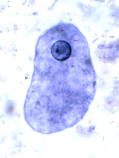 Parasitology - Entamoeba coli?
