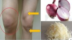 huesos doloridos diabetes insípida