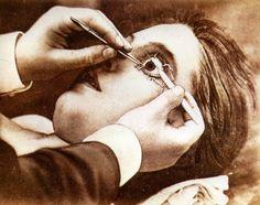 ☞ MD ☆☆☆ Dr. Albert de Montmeja - Eye Surgery, 1871.