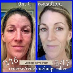 """Check out fellow Consultant Kim's fabulous results... """"Wow, what a before and after. I can't say enough about the amazing products from Rodan + Fields...except the pic speaks for it's self....sun drenched and damaged to milky luscious healthy skin AND no makeup, right after a work out. Please believe me when I say you can have the healthiest skin of your life."""" Why wait??"""