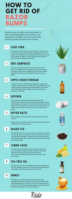 Home remedies for razor bumps