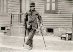 Lewis Hine - Handicapped Crippled Steelworker, Pittsburgh, ca 1908-1909