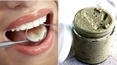 Cavities come from the breakdown of tooth tissue. It is permanent damage to the surface of your teeth that turns into small holes and black spots. So, you'll want to take necessary steps to prevent cavities from forming. Loch Im Zahn, Mint Oil, Natural Toothpaste, How To Prevent Cavities, Tooth Pain, Starchy Foods, Mouthwash, Oral Hygiene, Baking Ingredients