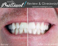 Agape Love Designs: Smile Brilliant Custom Fitted Teeth Whitening Kit Review