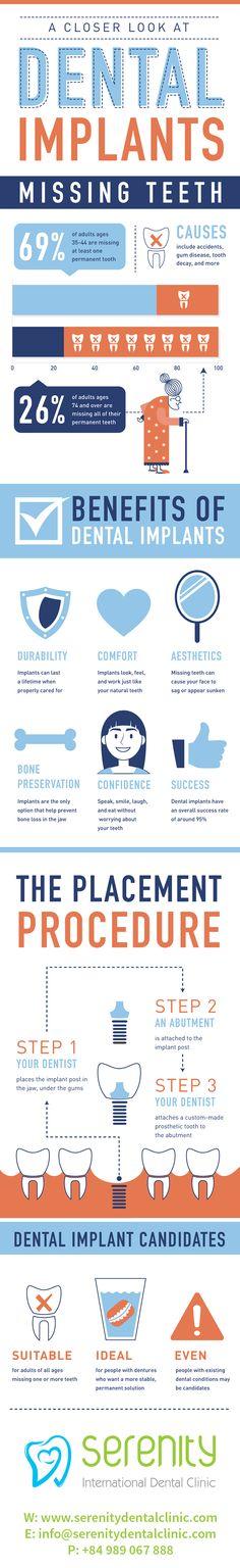 http://serenitydentalclinic.com/news/dental-implant/top-benefits-of-dental-implants/54