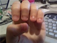 How to stop biting your nails. I needed to read this. I really need to stop!
