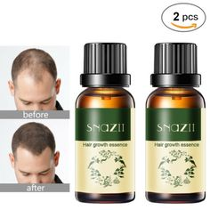 2 x Long Hair Fast Growth Essential Oil Helps Your Hair to Lengthen Grow Longer