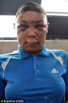 Images of transgender prisoner whose face was 'pulverized' by police after they stripped her and shaved her head spark outrage in Brazil.