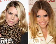 Billie Piper Weight Loss Before And After 1000+ images about Aci...