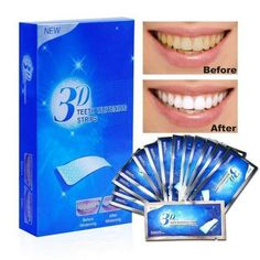 Aiooy Teeth Whitening Strips, Dental Enamel Safe Teeth Bleaching Treatment for Crystal Smile Non-Peroxide Whitener Kit Professional Remover of Teeth Stain Mint Flavor 14 pouches Teeth Bleaching, Stained Teeth, White Smile, Healthy Nails, White Teeth, Teeth Whitening, Kit, How To Remove, Beauty