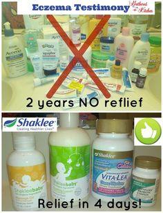 Shaklee: Eczema Testimony - Children's Eczema Relief with NO prescriptions or scary chemicals!!!  | Gathered In The Kitchen #childrenseczema #eczemarelief #shakleeeczema