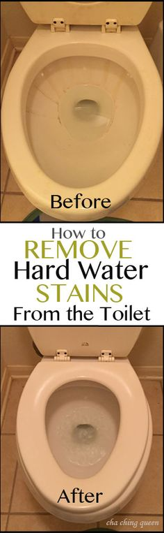 Fast and Easy – How to Remove Hard Water Toilet Bowl Stains