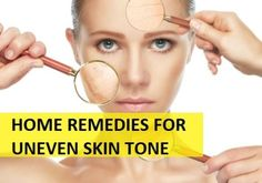 Home Remedies for Uneven Skin tone on Face and Body Face Skin, Face And Body, Darkness Around Mouth, Natural Skin Toner, Best Retinol Cream, Cosmetic World, Home Remedies For Skin, Uneven Skin Tone, Skin Elasticity