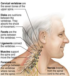 Whiplash can cause chronic neck pain even when the trauma seemed insignificant.  My post explains...