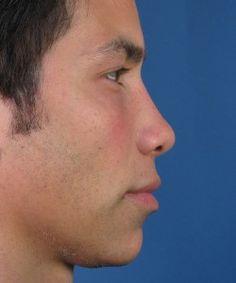 #CaseStudy - Narrowing a Male Nose. -Dr. John Hilinski #CosmeticSurgery #NoseJob
