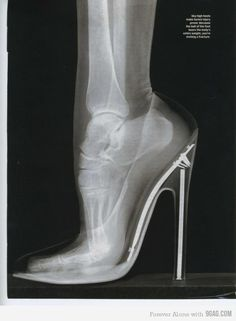 .What these heels do to your feet. I didn't want to see this :( - yikes ladies.