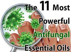 The 11 best Antifungal Essential Oils. A 2006 studies showed many essential oils were more effective than a popular prescription drug Hexaconazole.