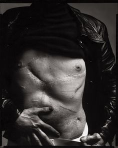 Andy Warhol, artist, New York, August 20, 1969 | Richard Avedon (Warhol's scars are from an assisination attempt, where he barely survived multiple gunshot wounds. He never fully recovered & for the rest of his life had to wear a corset to prevent his injuries from worsening. Years later, his wounds would still occasionally bleed after he overexerted himself.)