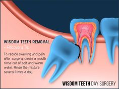 Wisdom Teeth Removal Recovery Tip