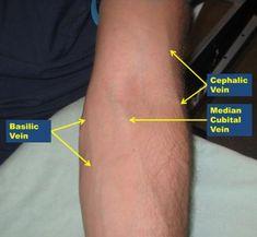 Antecubital veins, left arm.