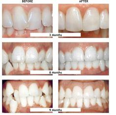 97 Best Phoenix Fastbraces images in 2015 | Dental care