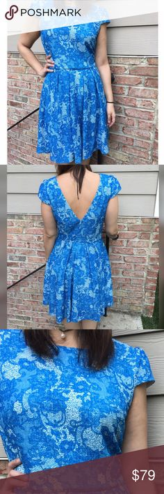 "Betsy Johnson Blue Lace Dress Worn once. Betsy Johnson lace design dress. Has a back zipper closure. Hits right at knee. Total length is 37"". Measures from pit to pit 16.5""./ waist 34"". Made of poly/ spandex blend. Reasonable offers considered through offer button only. Betsey Johnson Dresses"