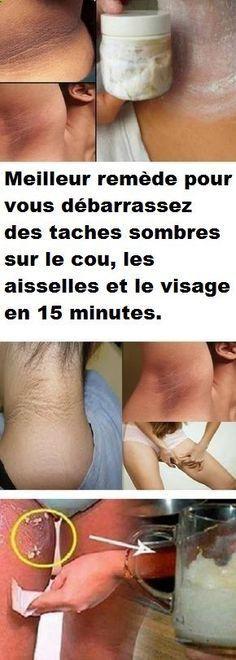 Meilleur remède pour vous débarrassez des taches sombres sur le cou, les aisselles et le visage en 15 minutes.