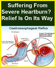 Home Remedies For Severe Heartburn In Pregnancy