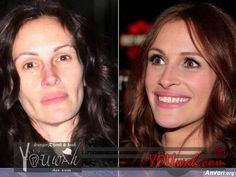 stars without makeup before and after | celebrities-without-make-up-41