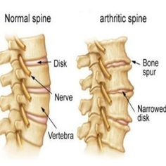 Natural Cures For Spinal Arthritis