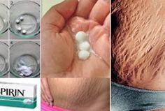 Elimina rápidamente las estrías con aspirina, los resultados no los podrás creer!!
