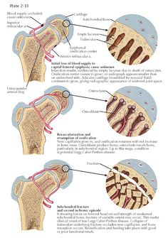 LEGG-CALVÉ-PERTHES DISEASE: PATHOGENESIS Greater Trochanter, Avascular Necrosis, Musculoskeletal System, Muscle Spasms, Calves, Baby Cows