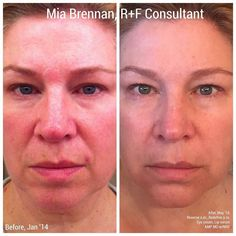 """I cannot be more happier to see my fellow RF sister Mia's amazing results using our RodanFields Redefine & Reverse Regimen and eye cream!  Here is what she had to say... """"You know what won't go out of style? Great skin!  Yep great skin is never out of style and taking care of your skin with great products isn't a fad!  Here's my latest before and after.  Before JAN '14 and after is this morning MAY '16.  I want to point out the improvement in my:  Tone and texture Pores Neck lines (!!! )…"""