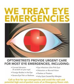 Optometrists are trained to diagnose and treat many eye issues such as pink eye, sensitivity to light, itchy eyes, and allergies just to name a few. When it comes to your eyes, go to your eye doctor first! Smoking Is Bad, Eye Infections, Eye Exam, Itchy Eyes, Healthy Eyes, Eyes Problems, Eye Doctor, Care Logo, Eyes