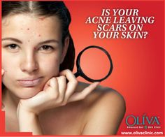acne scar treatment in bangalore, scar removal treatment bangalore, laser treatment for acne scars in bangalore
