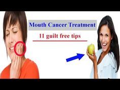 Mouth Cancer-11 Guilt Free  Treatment Tips of Oral Cancer| The A - Z Of Tongue Cancer Symptoms| - WATCH THE VIDEO   *** symptoms of throat cancer ***   When the tumor develops in the lining of the mouth, then it is called #mouth_cancer. You can learn 11 guilt free #treatment tips and #symptoms by this video. Mouth cancer treatment Mouth cancer, known as carcinoma, is wherever a growth progresses within the...