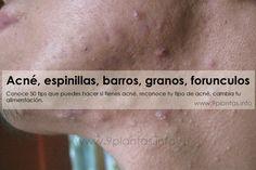 Conoce 50 tips que puedes hacer si tienes acné, reconoce tu tipo de acné, cambia tu alimentación.
