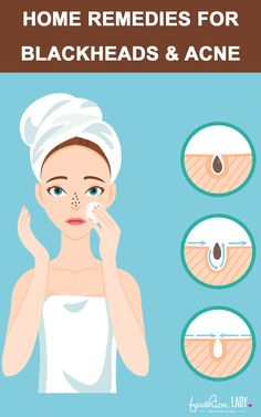 Watch This Video Effective Natural Remedies To Remove Blackheads Ideas. Irresistible Natural Remedies To Remove Blackheads Ideas. Natural Remedies For Anxiety, Natural Cough Remedies, Cold Remedies, Skin Care Remedies, Acne Remedies, Herbal Remedies, Natural Cures, Holistic Remedies, Diy Skin Care
